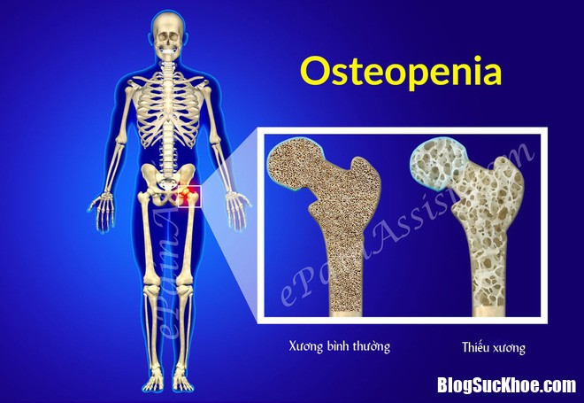 chung thieu xuong 3 1514174011826 Chứng thiếu xương chính là thủ phạm khiến xương của chị em yếu đi mỗi ngày