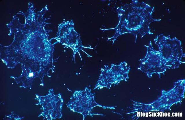 di can ung thu xay ra nhu the nao 52 .1525 Bạn biết gì về di căn ung thư ?