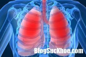 index 3 Cẩn thận với chứng viêm phổi lúc trời chuyển lạnh