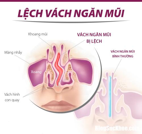 lech vach ngan mui 23152599 Có nên phẫu thuật khi bị lệch vách ngăn mũi ?