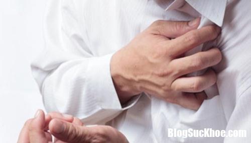 nhoi mau co tim 28162970 Các triệu chứng thường gặp của căn bệnh nhồi máu cơ tim