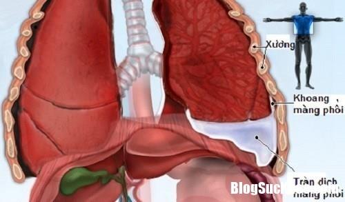 untitled tdmp thumb 690 71149181 Cần kiên trì khi chăm sóc bệnh nhân tràn dịch màng phổi
