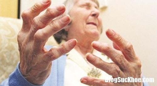 viem khop dang thap 1 29149542 Những bài thuốc trị viêm khớp dạng thấp