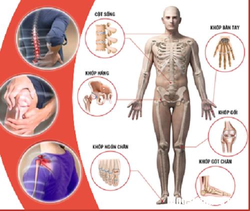 cac khop de bi ton thuong Bệnh cơ xương khớp chính là nguyên nhân chính gây tàn phế