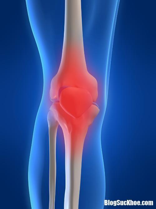 knee pain 31101046 Những triệu chứng nhận biết bệnh loãng xương