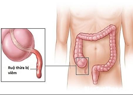 nhan biet dau hieu benh dau ruot thua Triệu chứng cần lưu ý để nhận biết viêm ruột thừa