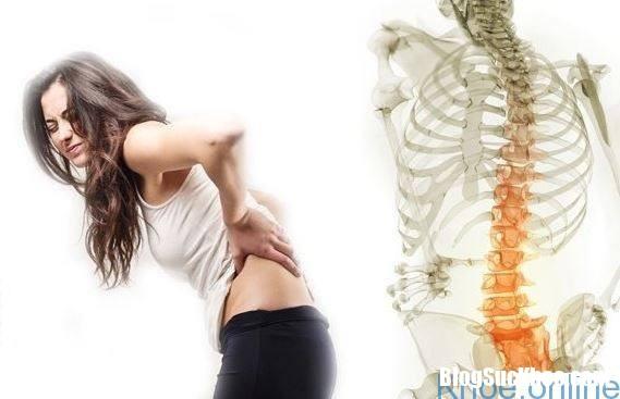 trieu chung thoai hoa cot song that lung 2 Dấu hiệu nhận biết thoái hóa cột sống thắt lưng