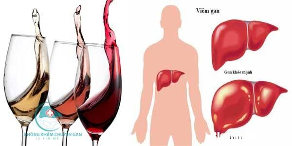 viem gan do ruou Những báo hiệu suy giảm chức năng gan