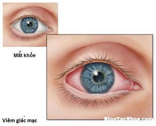 viem giac mac Nên điều trị sớm viêm giác mạc để tránh mù lòa