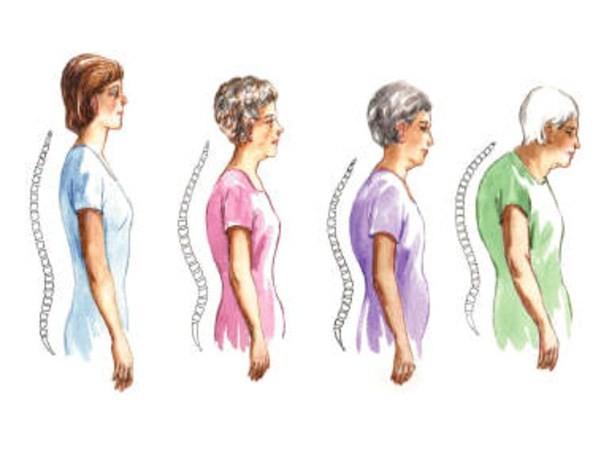 Osteoporosis Bone Tissue Disease Causes Symptoms and Prevention. Những việc cần làm để phòng chống loãng xương cho chị em