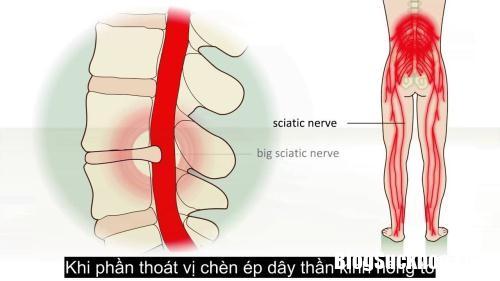 dau day than kinh toa 1 111518871 Bệnh đau dây thần kinh tọa có nguy hiểm không ?