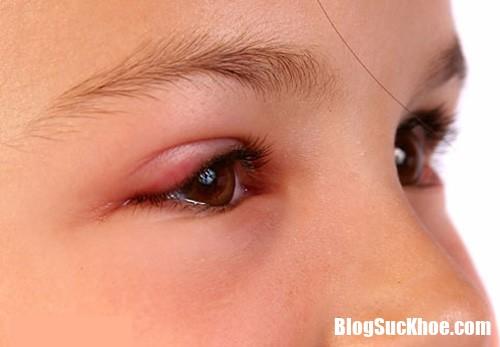 viem bo mi  Vì sao mùa xuân người ta thường ngứa mắt