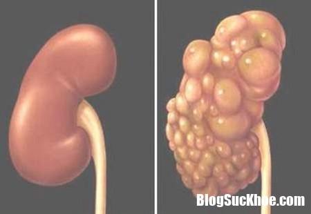 1509678130 benh than da nang va cac bien chung 1 Các biến chứng của bệnh thận đa nang