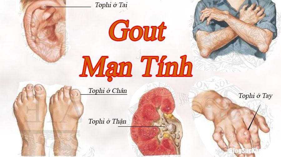 Benh gut Những biến chứng của bệnh gút và thuốc điều trị