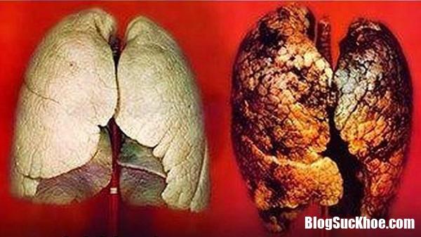 af7cothephathiensomungthuphoinhoxetnghiemmau Xét nghiệm máu giúp phát hiện sớm ung thư phổi