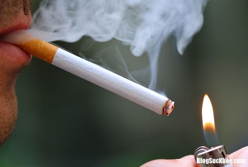 c052Anh 3 Mối liên hệ giữa hút thuốc và mất thính lực