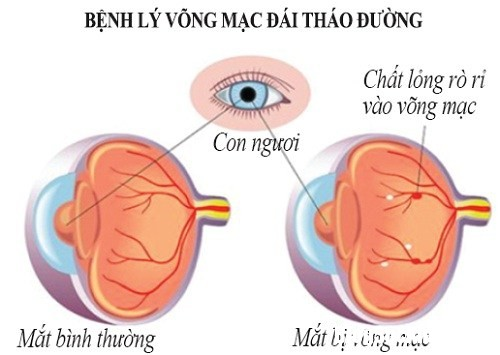 cac benh ve mat thuong gap o nguoi benh dai 1.png Những biến chứng bệnh về mắt do tiểu đường gây ra