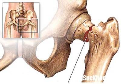 dieu tri loang xuong o nguoi cao tuoi Phương pháp chữa trị loãng xương hiệu quả cho người già