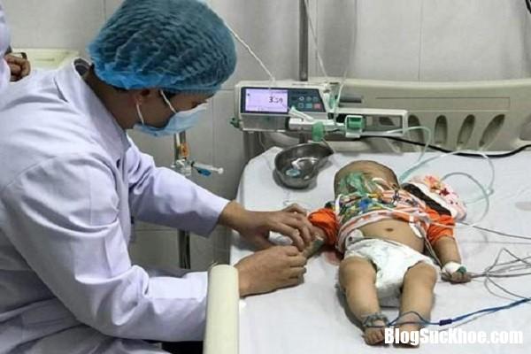 viem mang nao Căn bệnh nguy hiểm chết người lại có triệu chứng dễ nhầm với cảm cúm