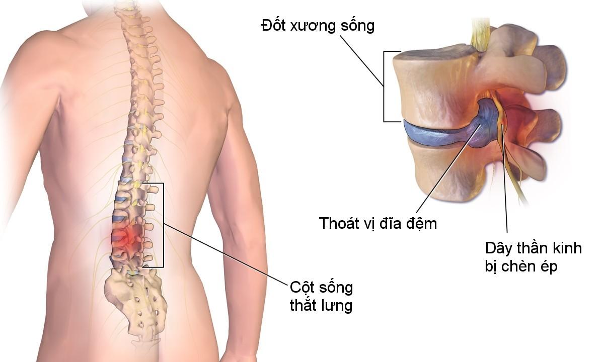 benh hoc thoat vi dia dem 2 Cùng tìm hiểu nguyên nhân và cách phòng bệnh thoát vị đĩa đệm