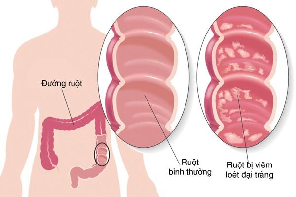doi pho voi viem dai trang 1 Cách nhận biết viêm đại tràng