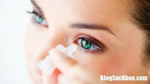 nhomat11121 rfqz Thị lực giảm do dùng thuốc nhỏ mắt sai cách