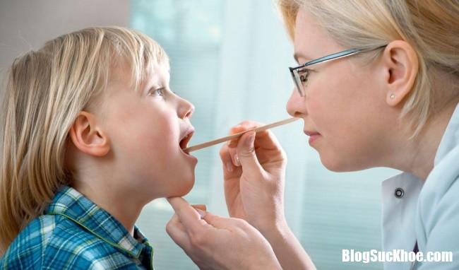 trieu chung viem thanh quan o tre nho11522831401 Nhận biết triệu chứng viêm thanh quản ở trẻ nhỏ và cách phòng ngừa