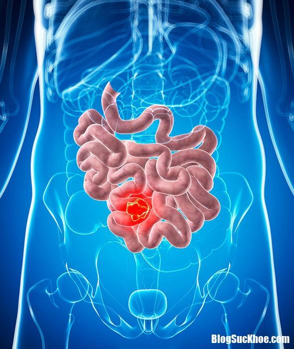 univadis 5  nhung dau hieu canh bao ung thu ruot BS.TuyetMai Những triệu chứng ung thư ruột cần lưu ý kẻo nhầm với bệnh khác