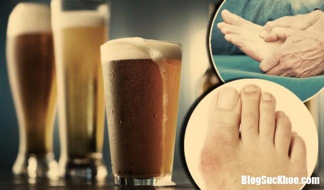 uong bia co lam tang nguy co mac benh gout11522049260 Uống bia thường xuyên có thể làm tăng nguy cơ mắc bệnh gout