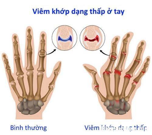 viem khop dang thap 281612597 Nguyên nhân và dấu hiệu của viêm khớp dạng thấp