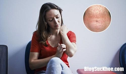 nhung tinh trang co lien quan den benh vay nen 123123213 Những tình trạng liên quan tới căn bệnh vẩy nến bạn nên biết