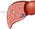 Đau bụng đi ngoài có thể là dấu hiệu sớm của 4 bệnh ung thư