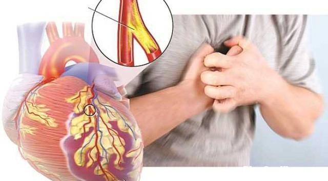 photo 1 15342900519451138787799 Những thói quen giúp người trẻ tránh xa bệnh tim mạch