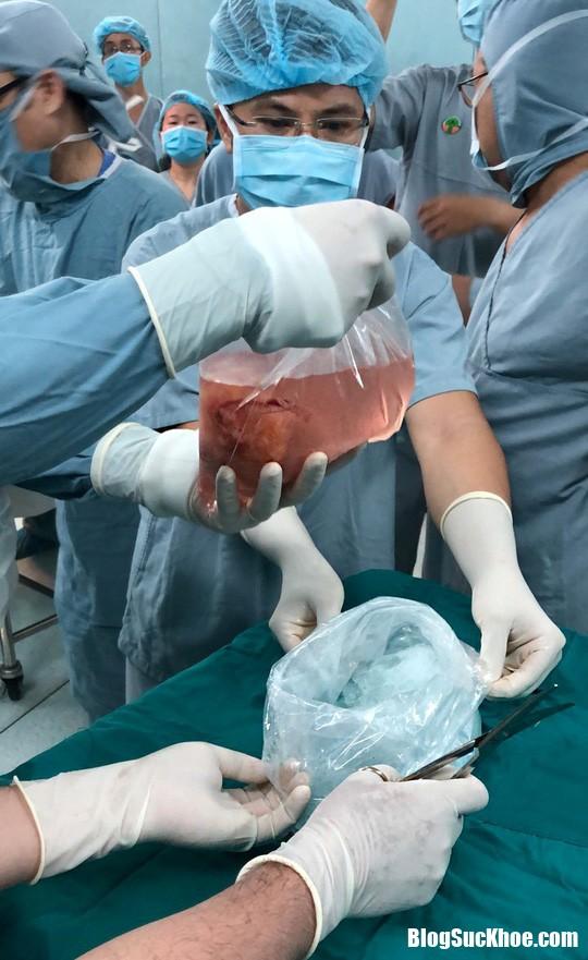 Me quyet sinh con ra de lay tang cho nguoi khac 1 1545697370 793 width540height881 Cảm động chuyện mẹ nuôi và sinh thai nhi vô não để hiến tạng