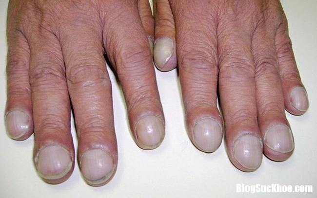photo 6 15450406577901528952713 Tình trạng móng tay thay đổi là dấu hệu báo bệnh nguy hiểm