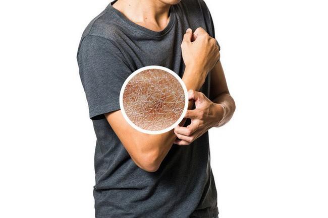 photo 10 1548600646083338438720 10 thói quen khi tắm đang gây hại cho cơ thể bạn từng ngày