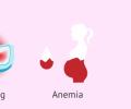 Polyp tử cung là bệnh gì? Ngăn chặn và điều trị như thế nào?