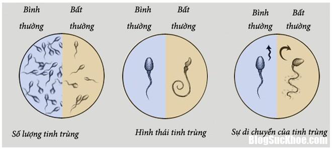 d4507573bf35566b0f24 15548030324271167787135 Nguyên nhân khiến tinh trùng bị biến dạng, ảnh hưởng đến sinh sản