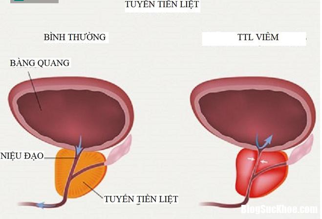 medilllargeprostatitis 1543714170551873021883 15437141824711247064967 15548033529971502500747 Nguyên nhân khiến tinh trùng bị biến dạng, ảnh hưởng đến sinh sản