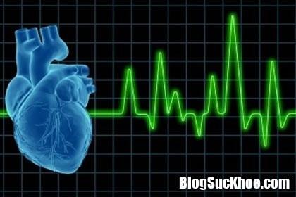 v8 qlxk Tim đập nhanh là dấu hiệu bệnh gì? Làm gì để ngăn chặn?