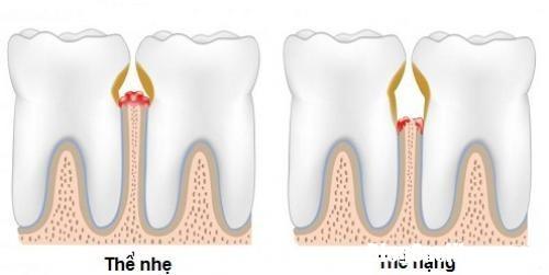 chaymauchanrang2 min Thường xuyên chảy máu chân răng thì nên biết điều này