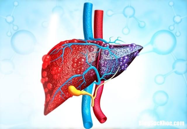 gan nhiem mo Người gầy cũng bị gan nhiễm mỡ, cách để ngăn ngừa căn bệnh này